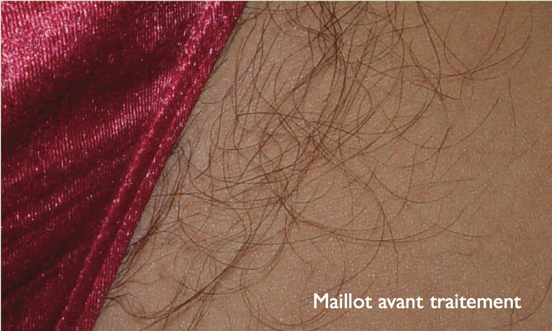 Maillot Avant Epilation