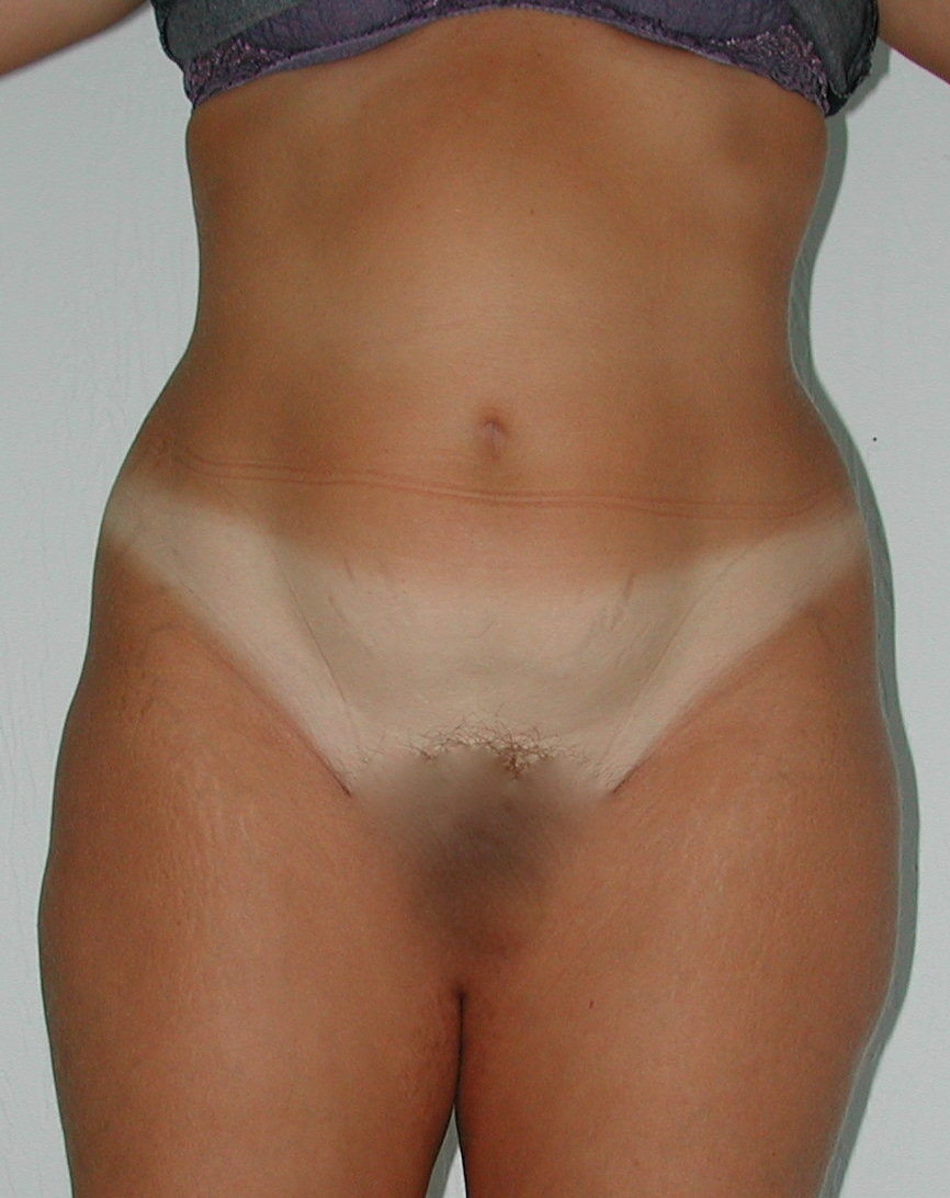 Lipoaspiration AVANT Ventre Face